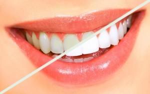 Sbiancamento-dei-denti-torino-Dentax
